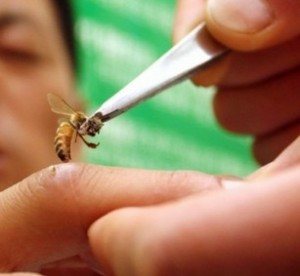 bee-venom-therapy