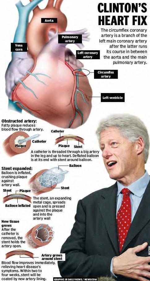President Bill Clinton's heart fix
