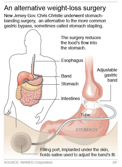 Trenton Nj Christie S Surgery Highlights Weight Loss Options