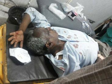 The editor in chief of Al-Tayyar Osman Mirghani at Khartoum hospital following an assault by masked gunmen on 19 July 2014 (Photo Courtesy Al-Tayyar)